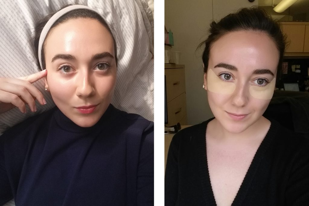 How I Beat Acne With The Power Of K Beauty Glow Recipe